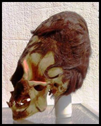Evidence Elongated Skulls Not Human Skull1